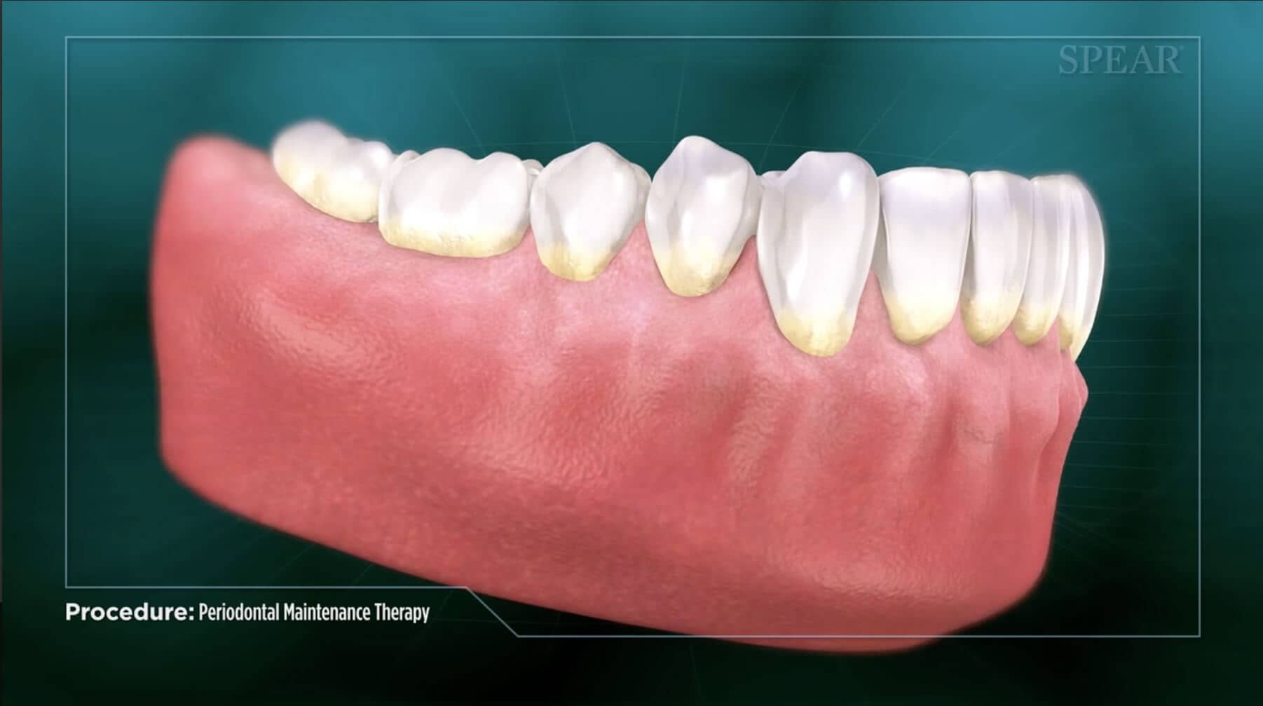 Video Preview of Periodontal Maintenance Therapy
